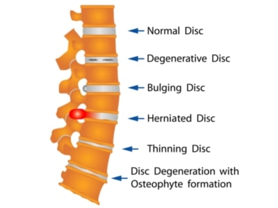 Chiropractic Services for Herniated Disc